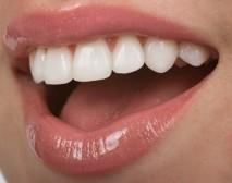 Teeth veneers create an even white smile