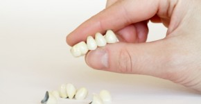 Beautiful dental crowns & new dental bridge