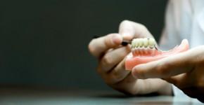 Dentures & partial dentures